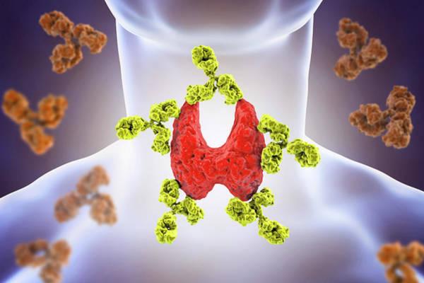 Diagnosis Wall Art - Photograph - Autoimmune Thyroiditis by Kateryna Kon/science Photo Library
