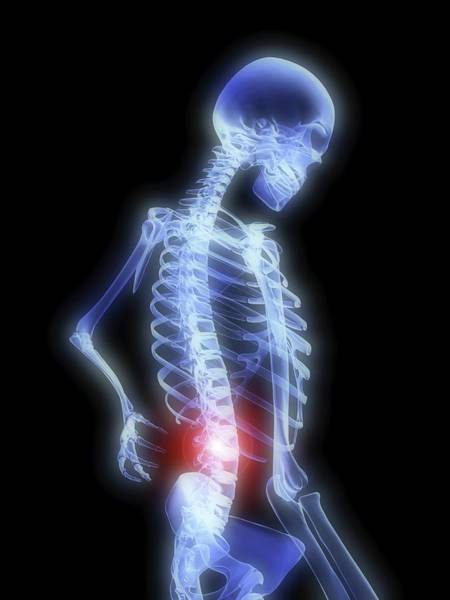 Radiograph Photograph - Back Pain by Alfred Pasieka
