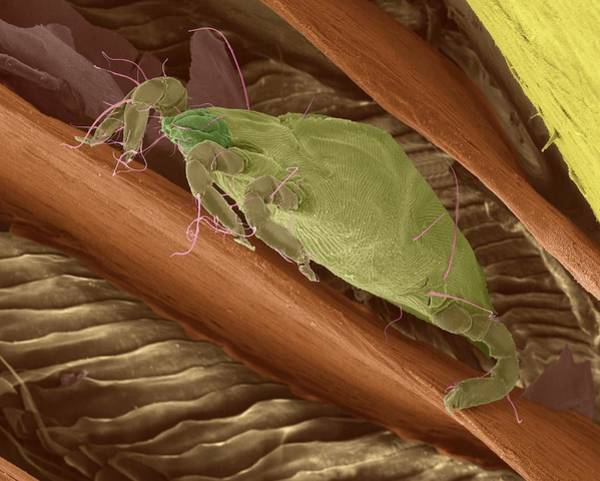 Wall Art - Photograph - Bird Mite Between Feather Barbs by Dennis Kunkel Microscopy/science Photo Library