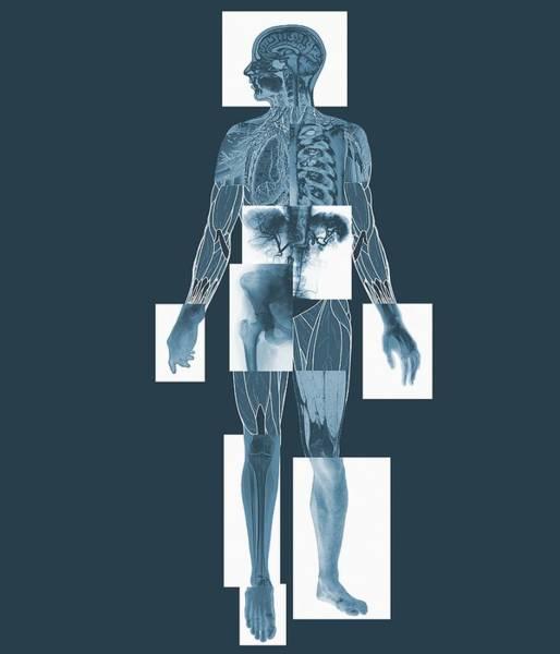 Body Imaging Art Print