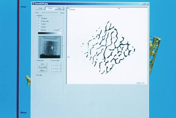 2d Photograph - Bone Biopsy by Mauro Fermariello/science Photo Library