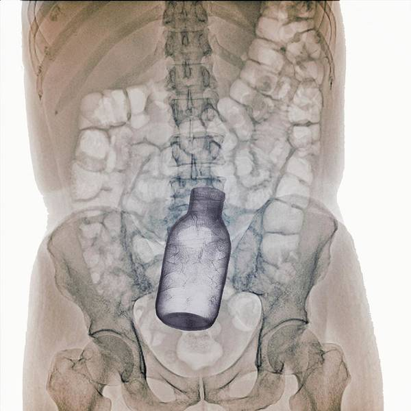 Wall Art - Photograph - Bottle In Rectum by Zephyr/science Photo Library