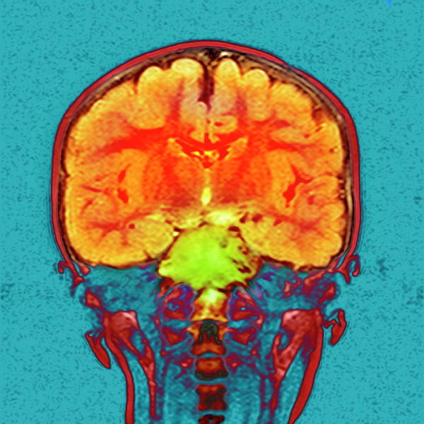 Brain Cancer Wall Art - Photograph - Brain Cancer by Simon Fraser/newcastle Hospitals Nhs Trust/science Photo Library