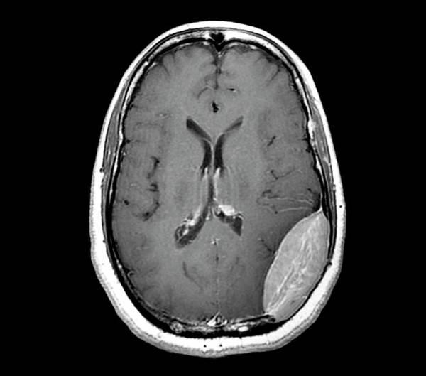 Brain Tumor Wall Art - Photograph - Brain Cancer by Zephyr