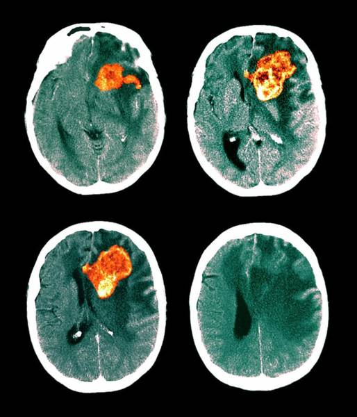 Medical Imaging Photograph - Brain Cancer by Zephyr/science Photo Library