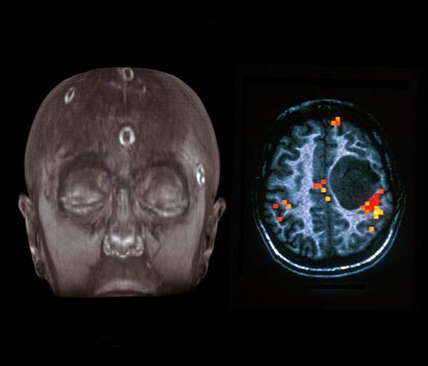 2d Photograph - Brain Lesion by Zephyr/science Photo Library