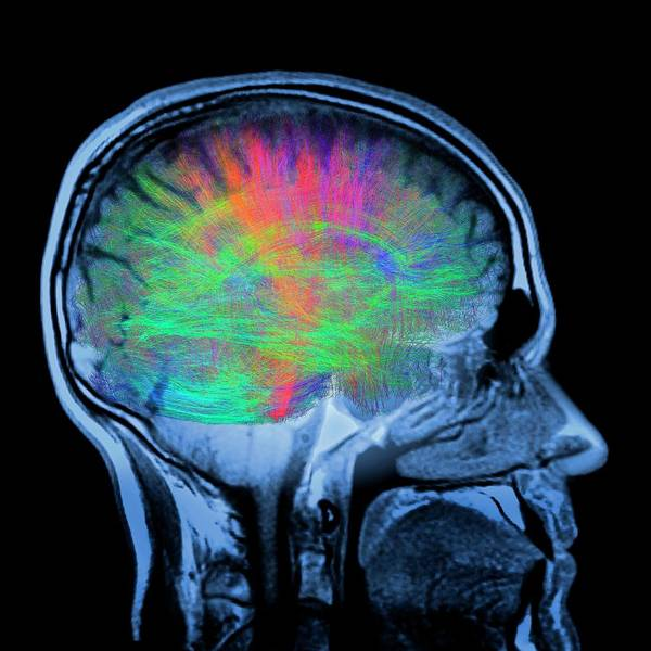 Mri Scan Wall Art - Photograph - Brain Mri And White Matter Fibres by Alfred Pasieka/science Photo Library