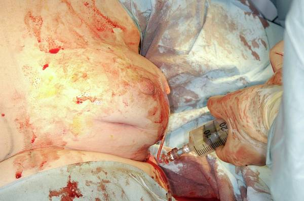 Plastic Surgery Wall Art - Photograph - Breast Implant Surgery by Dr P. Marazzi/science Photo Library