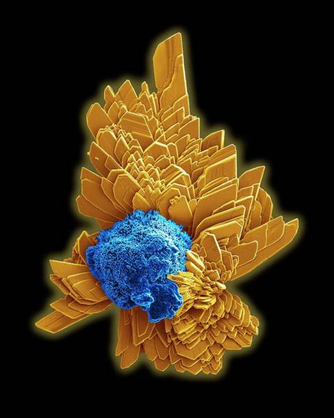 Biomimetics Wall Art - Photograph - Brushite Crystals by Kseniya Shuturminska / Science Photo Library
