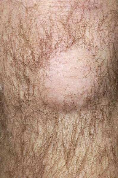 Inflammation Wall Art - Photograph - Bursitis Of The Knee by Dr P. Marazzi/science Photo Library