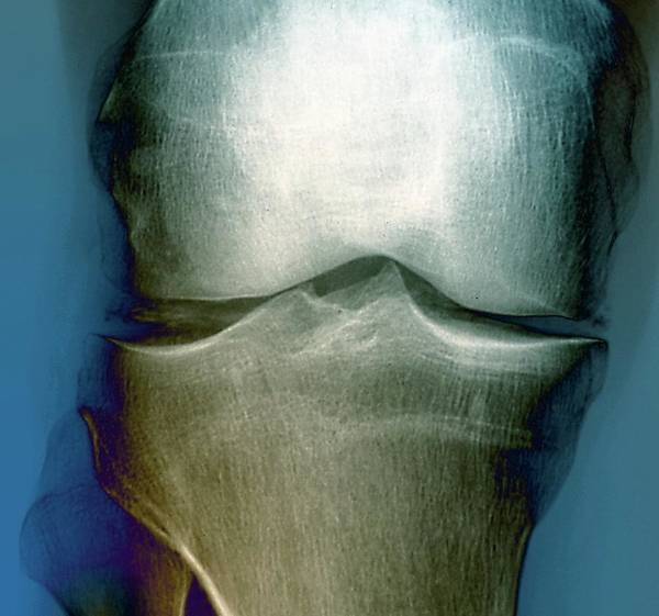 Deposit Photograph - Calcification In The Knee by Zephyr