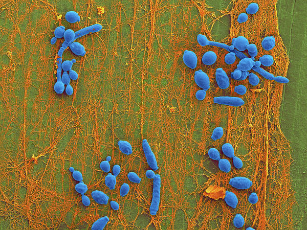 Coccoid Photograph - Candida Infected Medical Catheter by Dennis Kunkel Microscopy/science Photo Library