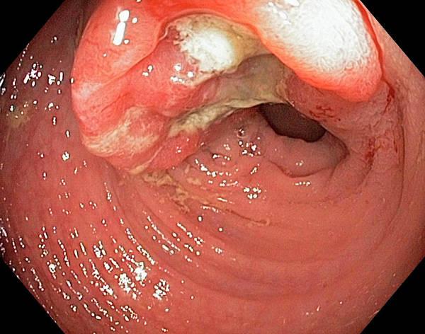 Abdominal Photograph - Colon Cancer by Gastrolab