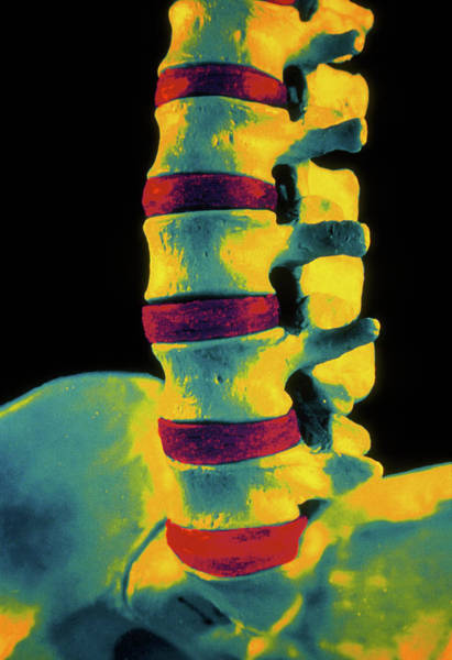 Lumbar Vertebra Photograph - Coloured 3-d Ct Scan Of Lower Spine by Gjlp/science Photo Library