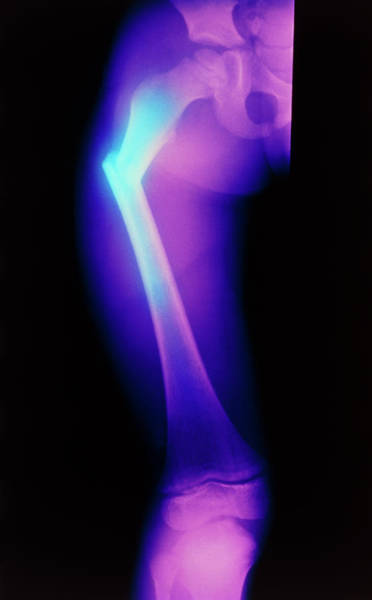 Wall Art - Photograph - Coloured X-ray Image Of A Child's Broken Femur by Science Photo Library