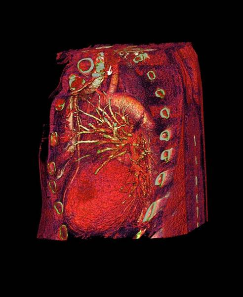 Internal Organs Photograph - Coronary Artery Bypass Graft by Anders Persson, Cmiv