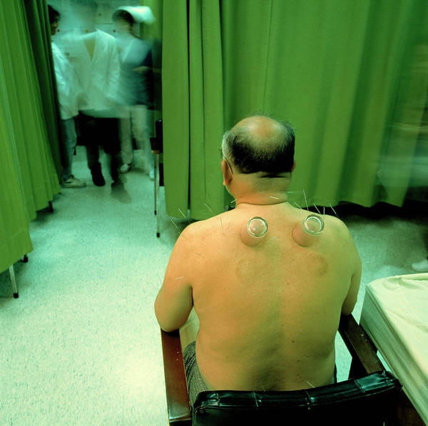 Taiwanese Wall Art - Photograph - Cupping Therapy by Mark De Fraeye/science Photo Library