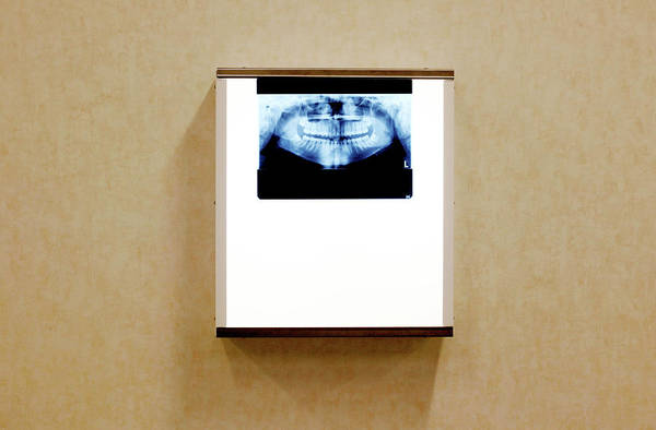 Light Box Photograph - Dental X-ray by Mauro Fermariello/science Photo Library