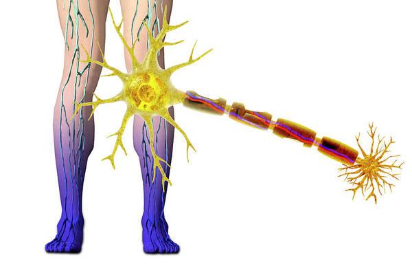 Neuron Wall Art - Photograph - Diabetic Neuropathy by Carol & Mike Werner