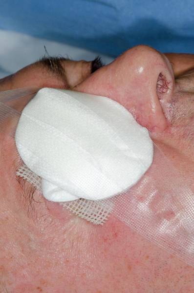 Dressing Photograph - Excision Of A Basal Cell Skin Cancer by Dr P. Marazzi/science Photo Library