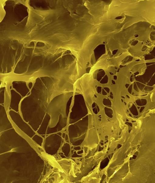 Iv Wall Art - Photograph - Extracellular Matrix by Dennis Kunkel Microscopy/science Photo Library