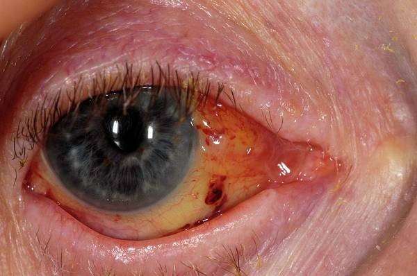 Wall Art - Photograph - Eye After Cataract Surgery by Dr P. Marazzi/science Photo Library