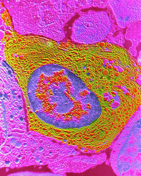 Wall Art - Photograph - False-colour Tem Of A Human Plasmocyte by Cnri/science Photo Library