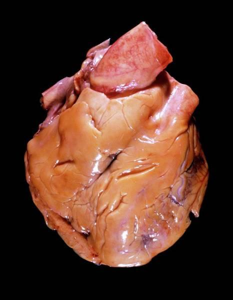 Fatty Tissue Photograph - Fatty Heart by Pr. R. Abelanet - Cnri