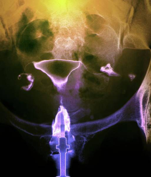 Wall Art - Photograph - Female Reproductive System by Zephyr/science Photo Library
