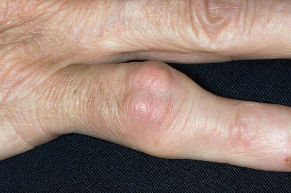 Wall Art - Photograph - Gout Tophus On Finger by Dr P. Marazzi/science Photo Library