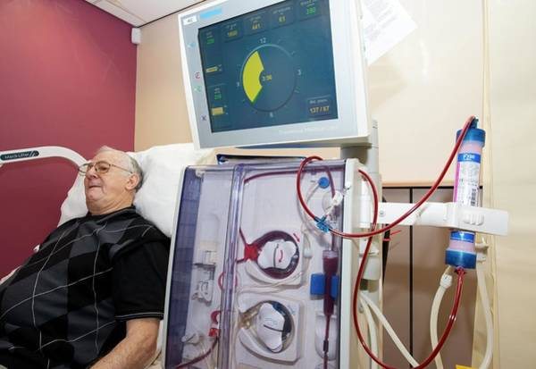 Wall Art - Photograph - Haemodialysis Patient by Dr P. Marazzi/science Photo Library