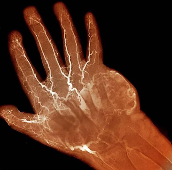 Hand Anatomy Wall Art - Photograph - Hand Tumour by Zephyr