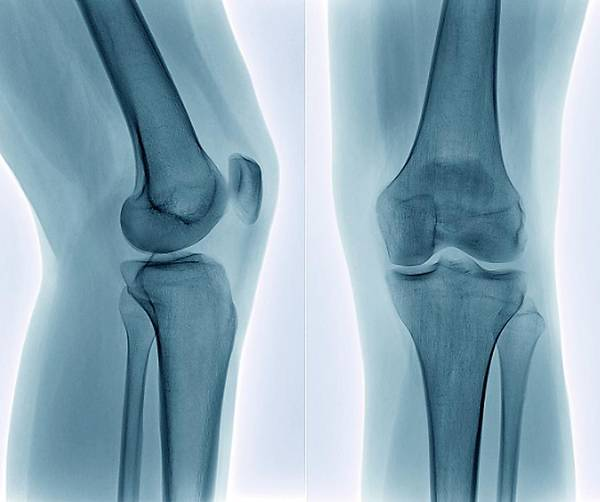 Radiological Photograph - Healthy Knee by Zephyr/science Photo Library