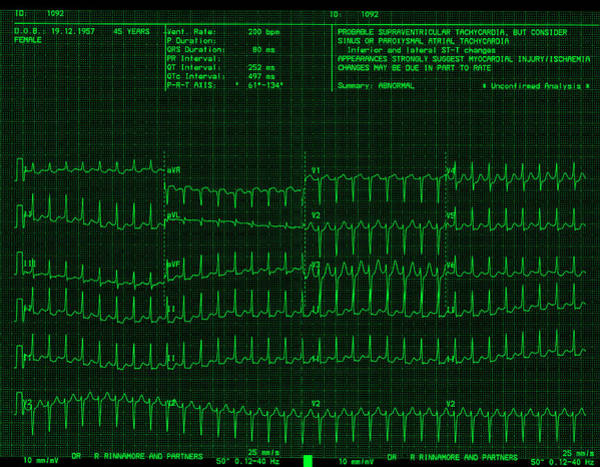 Wall Art - Photograph - Heart Disease Ecg by Dr P. Marazzi/science Photo Library