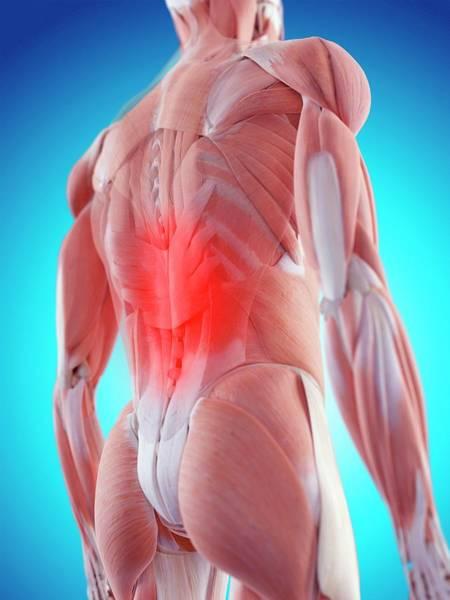 Wall Art - Photograph - Human Back Pain by Sebastian Kaulitzki/science Photo Library