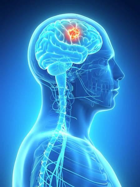 Brain Tumor Wall Art - Photograph - Human Brain Tumor by Sebastian Kaulitzki