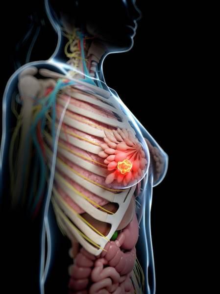 Neoplasm Photograph - Human Breast Cancer by Sebastian Kaulitzki