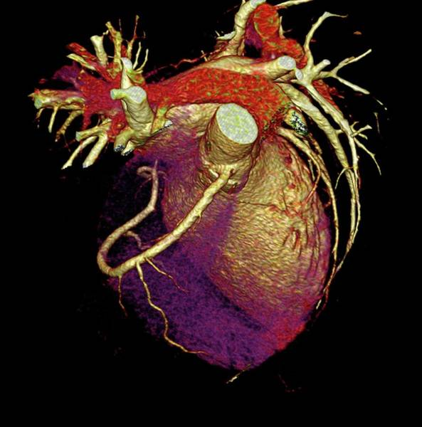 Artery Wall Art - Photograph - Human Heart by Anders Persson, Cmiv