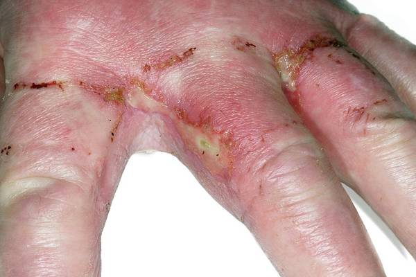 Wall Art - Photograph - Infected Acid Burns by Dr P. Marazzi/science Photo Library