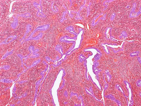 Infection Wall Art - Photograph - Inflamed Fallopian Tube by Steve Gschmeissner