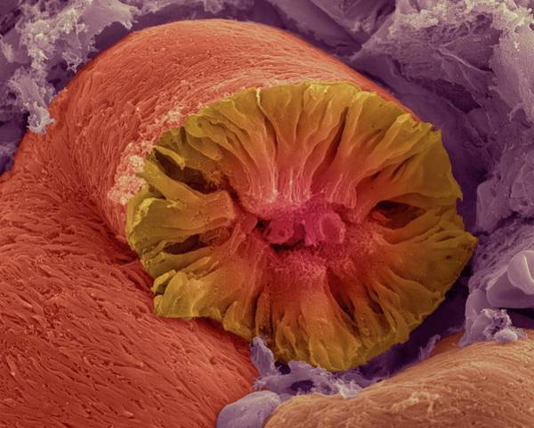 Unit Photograph - Kidney Tubule by Dennis Kunkel Microscopy/science Photo Library