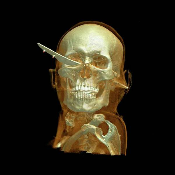 Wall Art - Photograph - Knife Skull Injury by Anders Persson, Cmiv