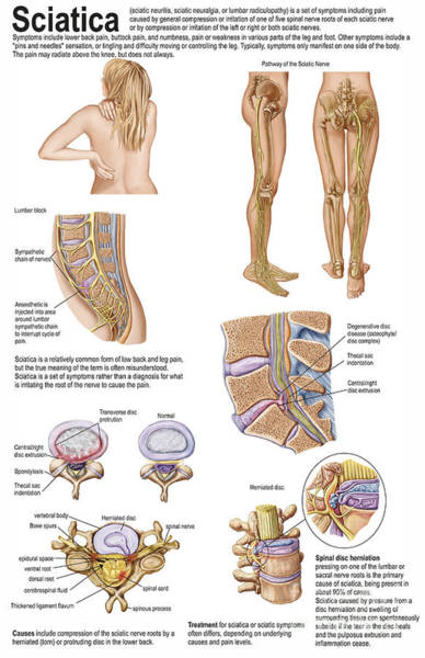Lumbar Plexus Digital Art - Medical Chart Showing The Signs by Stocktrek Images