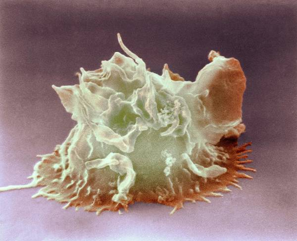 Immune Cell Wall Art - Photograph - Monocyte White Blood Cell by Nibsc