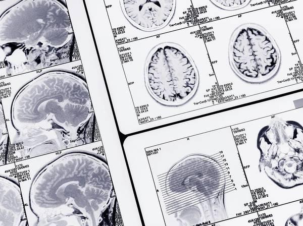 Diagnosis Wall Art - Photograph - Mri Brain Scans by Tek Image