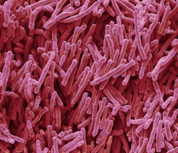 Saprophytic Wall Art - Photograph - Mycobacterium Smegmatis Bacteria by Steve Gschmeissner