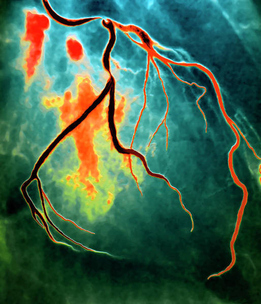 Wall Art - Photograph - Narrowed Coronary Artery by Zephyr/science Photo Library