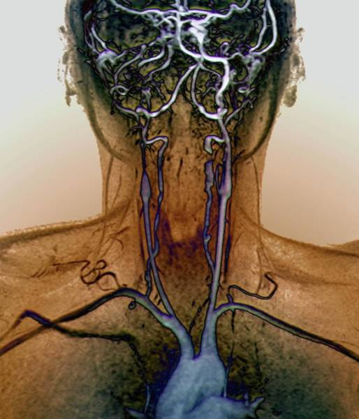 Wall Art - Photograph - Neck And Brain Aneurysms by Zephyr/science Photo Library