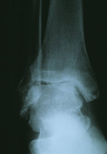 Radiograph Wall Art - Photograph - Osteoarthritis Of The Ankle by Dr P. Marazzi/science Photo Library