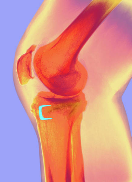 Staples Photograph - Osteoarthritis Of The Knee by Dr P. Marazzi/science Photo Library